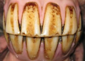Incisors in a healthy equine mouth